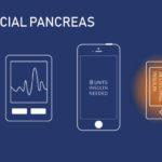 Artificial Pancreas | Insightscare