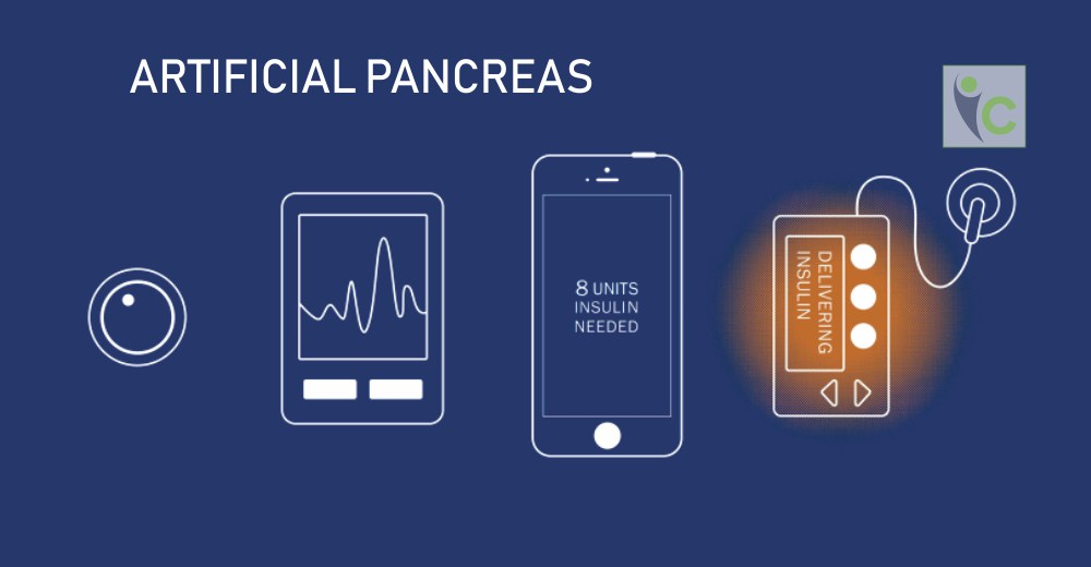 3 Things to Known about Artificial Pancreas | Insights Care